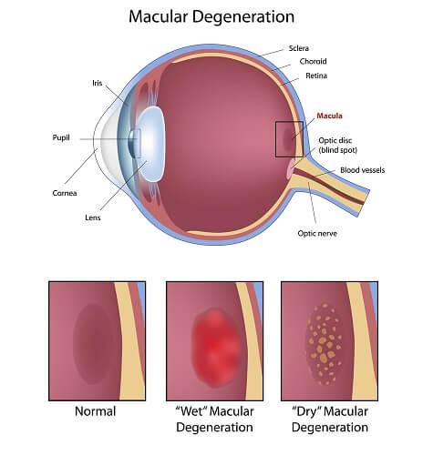 Macular Degeneration Chart