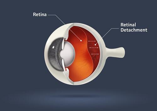 Chart Showing Retinal Detachment in the Eye